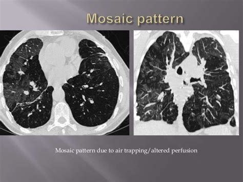 lung pattern classification interstitial lung diseases hrct