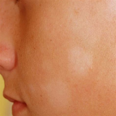 light spots on skin white spots on skin pictures causes treatment