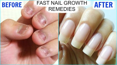how to grow strong nails fast at home