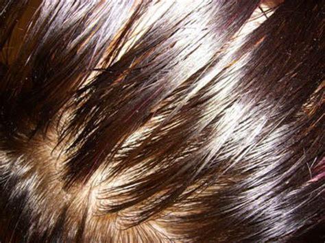 sebum on scalp