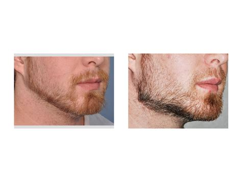 angular jaw line jaw angle implant archives page 6 of 8