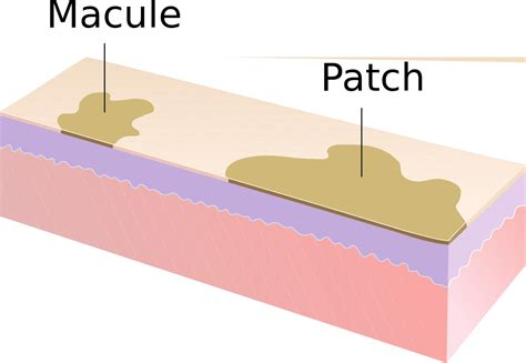Derma Acne Patch Original file macule and patch svg wikimedia commons