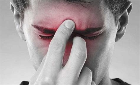 seni diversi sinusite cause sintomi e rimedi naturali depurarsi in
