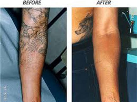 quarter sleeve tattoo removal 9 best laser tattoo removal treatments styles at life