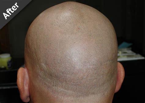 scalp micropigmentation for blonde hair men scalp pigmentation free consultation
