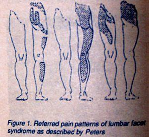 pattern medical meaning referred pain patterns physical therapy pinterest