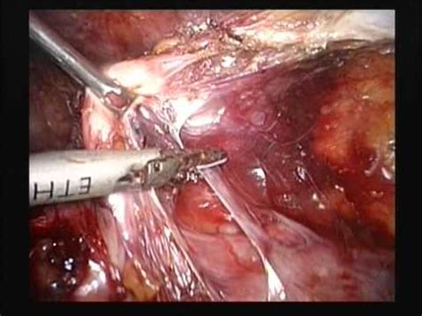 pelvic adhesions after c section laparoscopic hysterectomy in a patient with h o 4 c