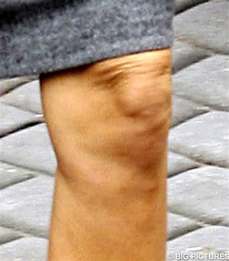 Beckham Thinks Arms Are Flabby by Beckham S Posh Spice Half Inch Of Knee Flab