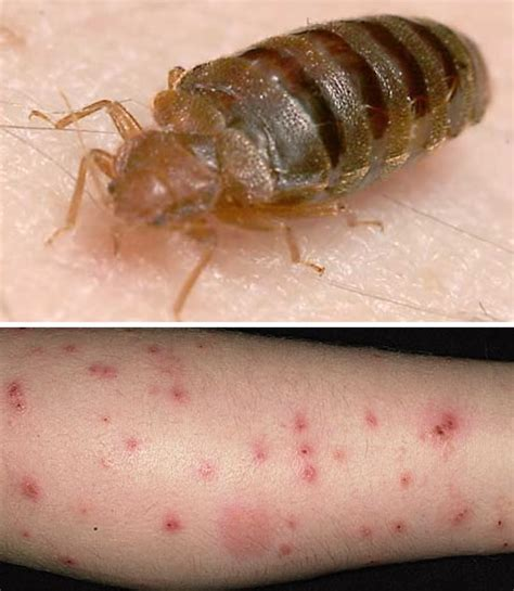 bed bugs control bed bugs control fruit flies extermination