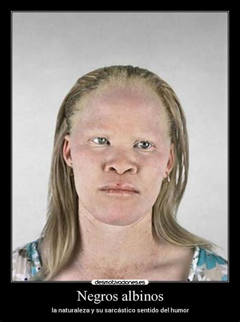 Albino Meme - negros albinos memes