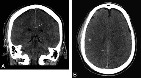 ct scan sections ct scan sections 28 images fig 1 ct scan coronal