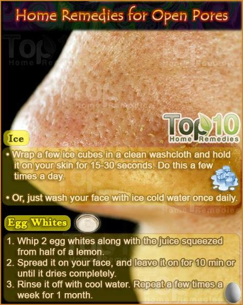 best 25 remedies for blackheads ideas on