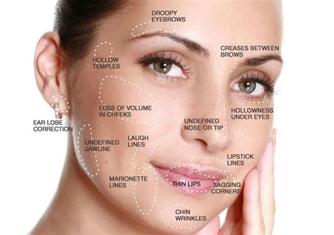 dermal fillers in adelaide medicine of cosmetics