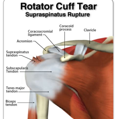 rotator cuff injury from bench press download rotator cuff injury from bench press sun design me