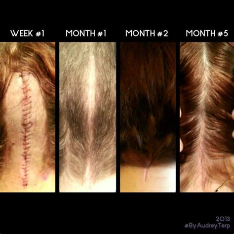 pics of small brain surgery cuts healing 1389 best chiari the brain the skull images on