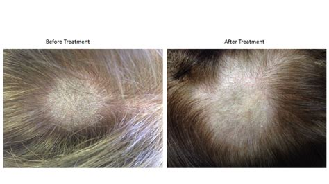 Candida Detox Hair Loss by Candida Sv Creme Yeast Infection Aggressive Chronic