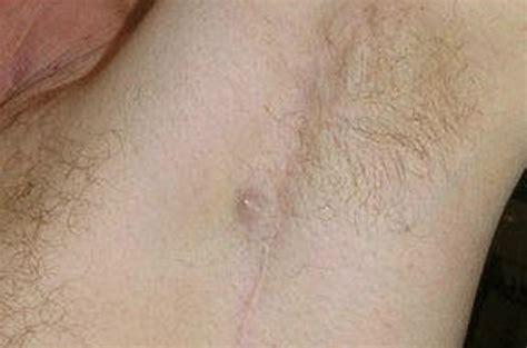 underarm rash causes image gallery shingles underarm