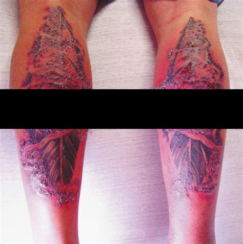 tattoo infection mycobacterium mycobacterium chelonae illnesses associated with tattoo