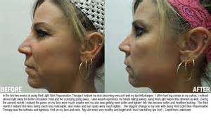 light therapy before and after light therapy for acne reviews newhairstylesformen2014