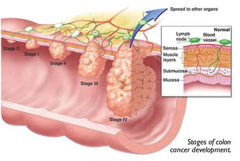 healthy viewpoints colon cancer more common than you think