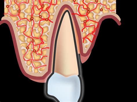 zahnschmerzen liegen zahnschmerzen denta beaute zahnmedizin