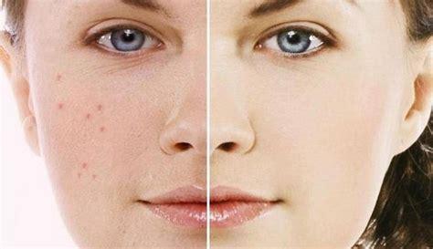 manfaat masker beras  kulit wajah clean jerawat