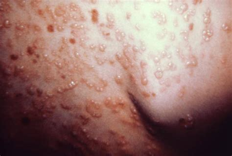 Gluten Detox Hives by Four Steps To Help Heal Your Dermatitis Skin Conditon