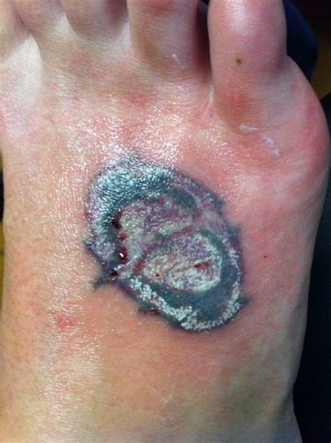 tattoo removal swelling the effects of laser removal dressed to kill