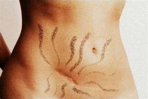 ernia ombelicale interna 187 postura e cicatrice un approccio osteopatico