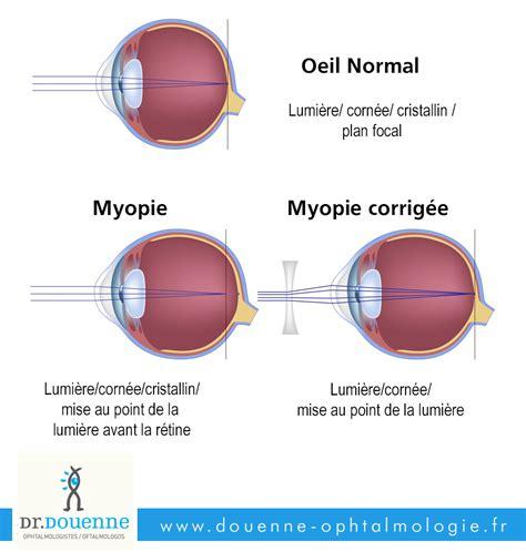 correction myopie lentille la myopie chirurgie de l oeil dr douenne 188   myopie