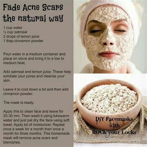 10 Ways To Treat Acne Scars by 267 Likes