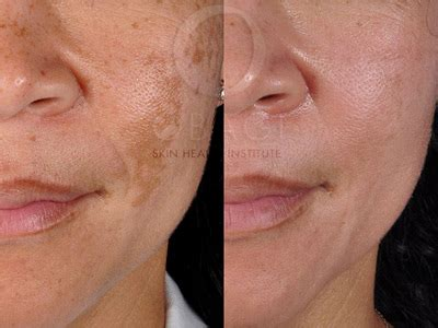Synergy Detox Precision Cleanse by Melasma Lip Images Hairsstyles Co