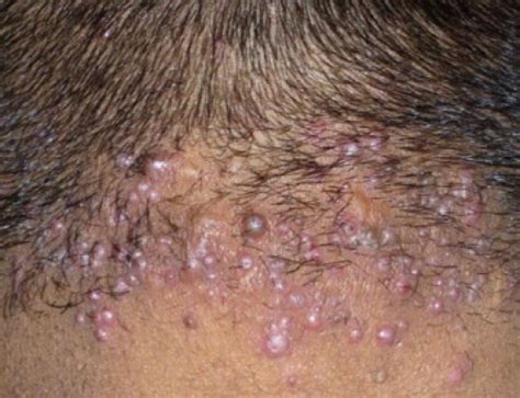 ingrown pimple on back whitehead pimple on pubic area www pixshark com images