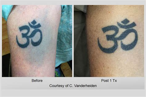 tattoo removal louisville laser removal gallery picosure inklifters