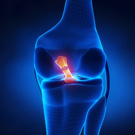 torn acl home treatment anterior cruciate ligament acl tear