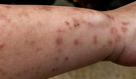 images of bed bug bites bed bug bites on 28 images bed bug bite treatment tips bed bug treatment site bed