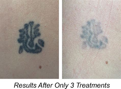 tattoo removal results removal specialist findlay oh findlay medspa