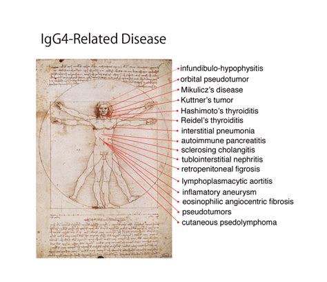 Serum Rd clinical conditions in igg4 rd