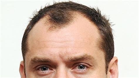 hair cloning 2015 most recent news what is hair cloning hair transplant cosmetic surgery