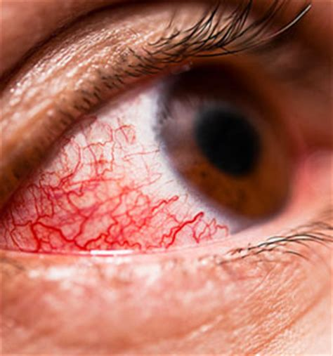 a substance that causes sensitivity to light irritated watering chances are you ve got pink eye