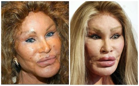 plastic surgery after c section catwoman plastic surgery mycheckweb