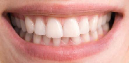 easy ways  whiten teeth  photoshop cs guiding tech