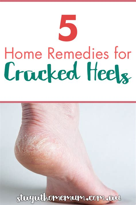 5 home remedies for cracked heels