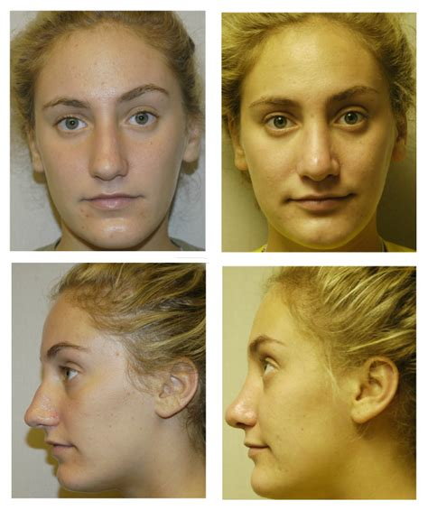 cosmetic surgery facial procedures houston tx facial procedures before and after gallery birmingham