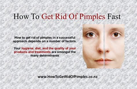 how to get rid of acne fast with home remedies