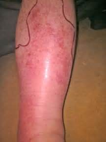 Cellulitis in adults is a common medical condition taking up a large
