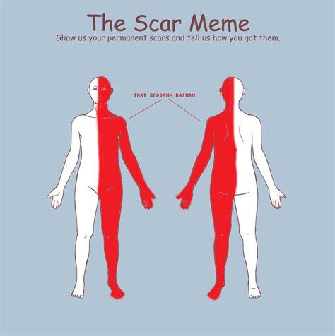 Scar Meme - scar meme by silfy on deviantart