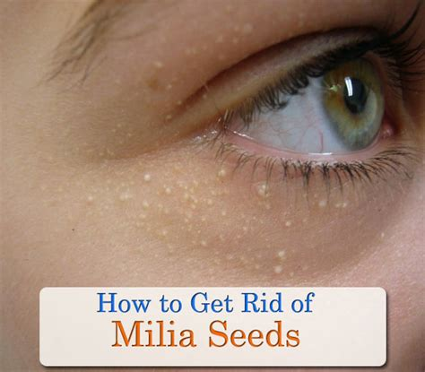 Get Rid Of That Icky Eyed Look by Milia Treatment Ways To Remove Milia Create