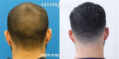 fue hair transplant westminister clinic fue hair transplant the best hair of 2018