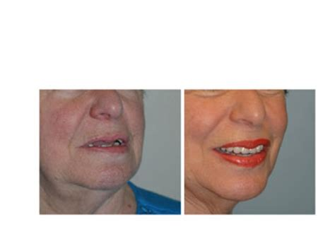 David H Gilbert Dds Ms Mba Inc Upland Ca 91786 by Before After Dental Implant Photos Upland Rancho